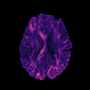 Patch2Self improves the speed of clinical MRI while also improving the quality of diffusion MRIs and all dMRI analysis.